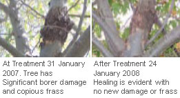 before-and-after-treatment